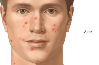 Image result for acne and pimples